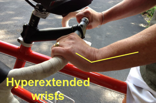 Hyperextended Wrists lead to numbness and tingling hands