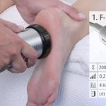 New help for runners/cyclists with plantar fasciitis